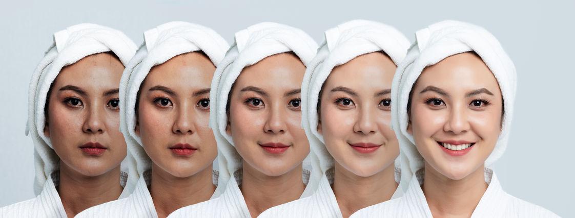 Verbetering pigment vlekken met huidbehandeling
